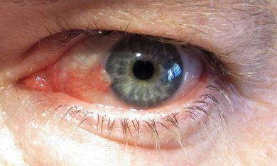 Conoce el biofármaco para tratar la enfermedad ocular